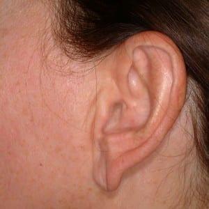 Ear Surgery - Before Photo