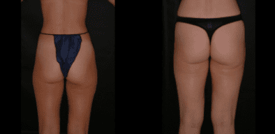 Liposuction Outer Thighs Before and After