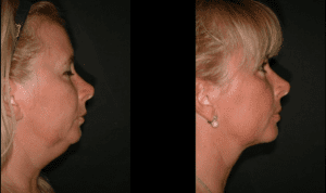 3 Kybella treatments 6 weeks apart by Dr. Koch