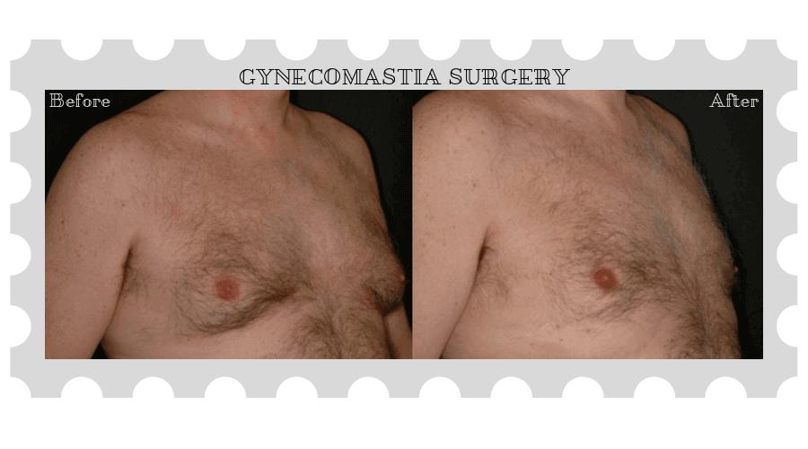 gynecomastia-003-after-e-Blog-BA-img