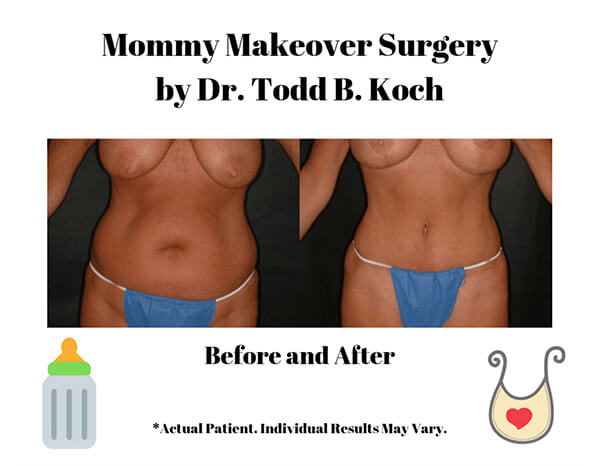 Mommy makeover before and after.