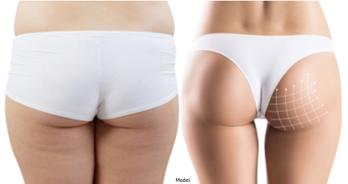 Before and after results of a women who underwent a butt augmentation.