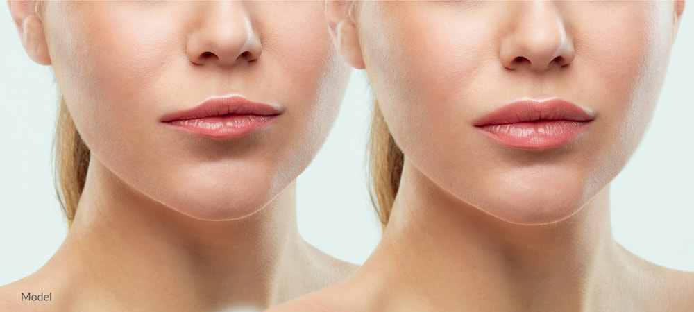 Before and after image showing the potential of fillers in the lips.