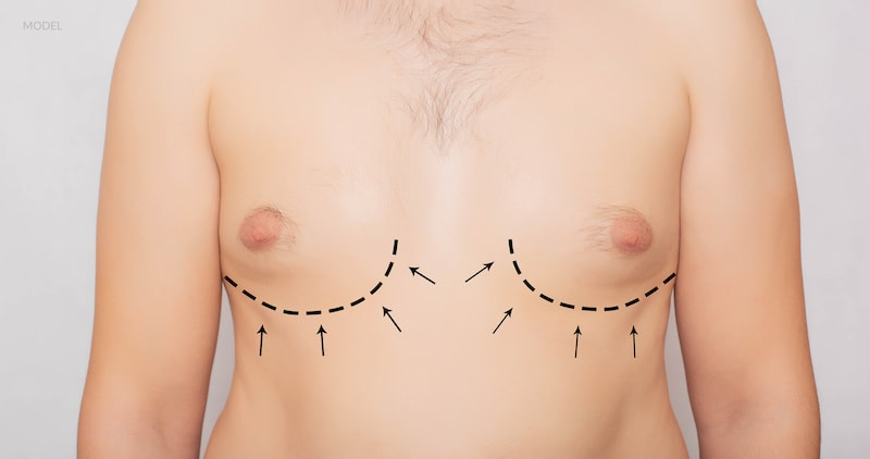 Surgical lines drawn on a male chest to represent gynecomastia surgery.