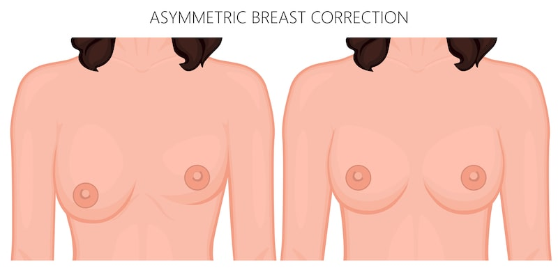Illustration showing breast asymmetry before and after correction.