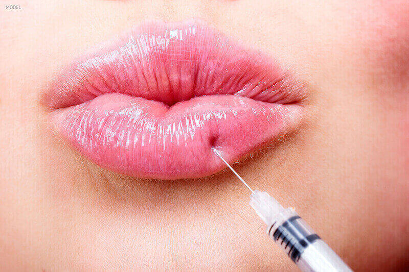 Woman getting injection into her bottom lip